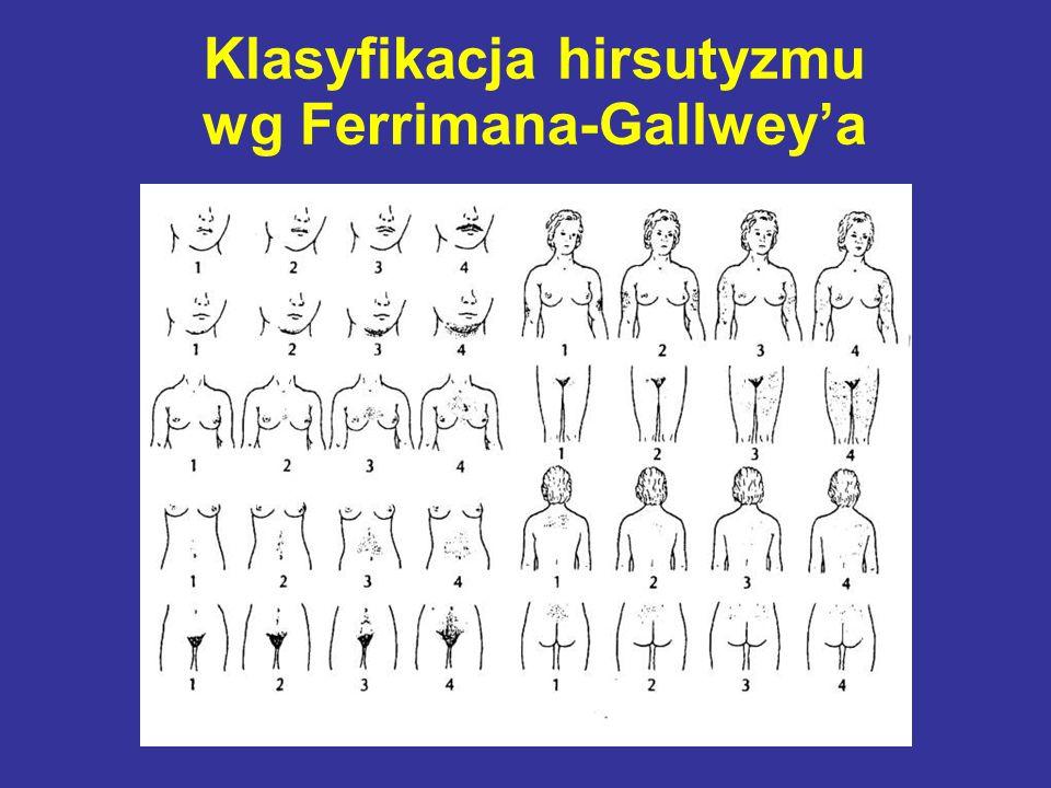 Klasyfikacja hirsutyzmu wg Ferrimana-Gallwey'a