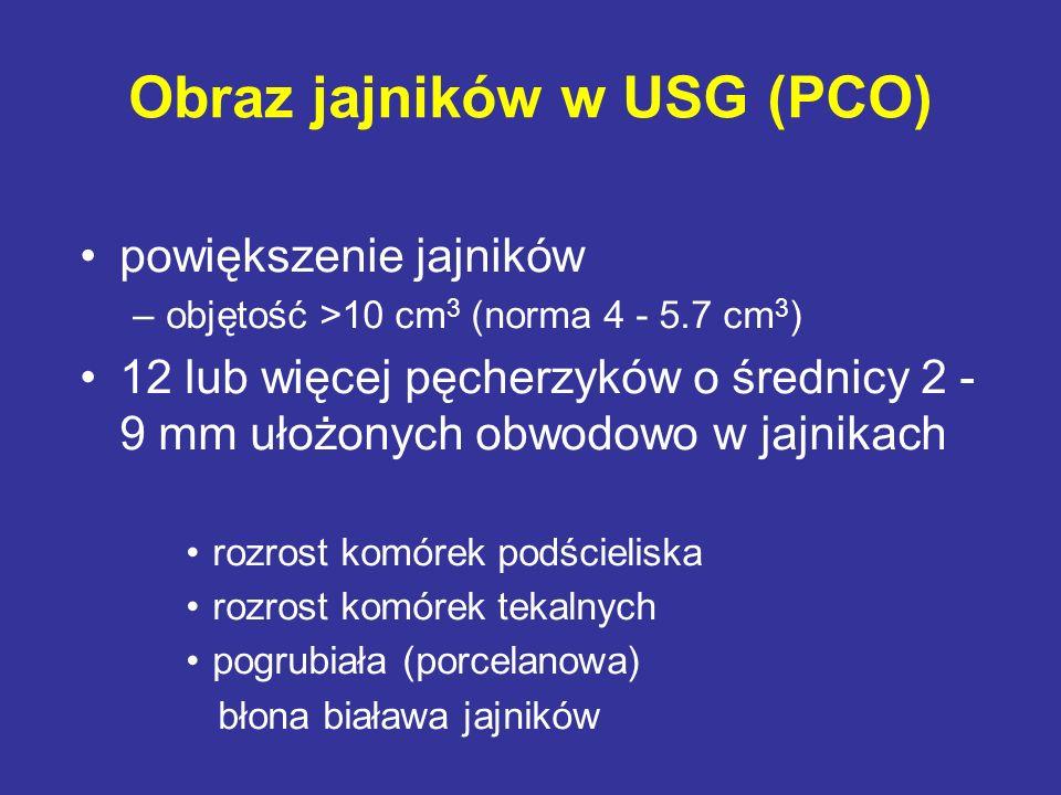 Obraz jajników w USG (PCO) powiększenie jajników –objętość >10 cm 3 (norma 4 - 5.7 cm 3 ) 12 lub więcej pęcherzyków o średnicy 2 - 9 mm ułożonych obwo