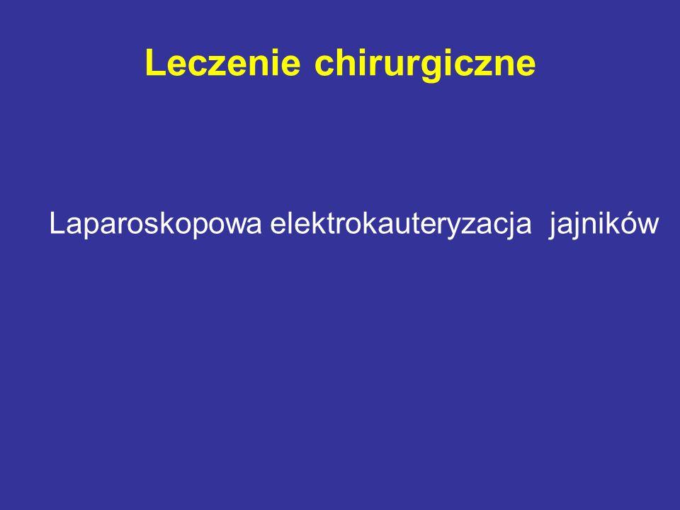 Leczenie chirurgiczne Laparoskopowa elektrokauteryzacja jajników