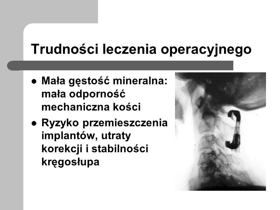 Trudności leczenia operacyjnego Mała gęstość mineralna: mała odporność mechaniczna kości Ryzyko przemieszczenia implantów, utraty korekcji i stabilnoś
