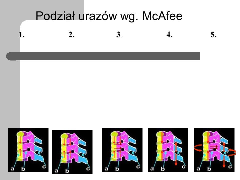 Podział urazów wg. McAfee przednia kolumna 1.2. 3.3.3.3.4.5.