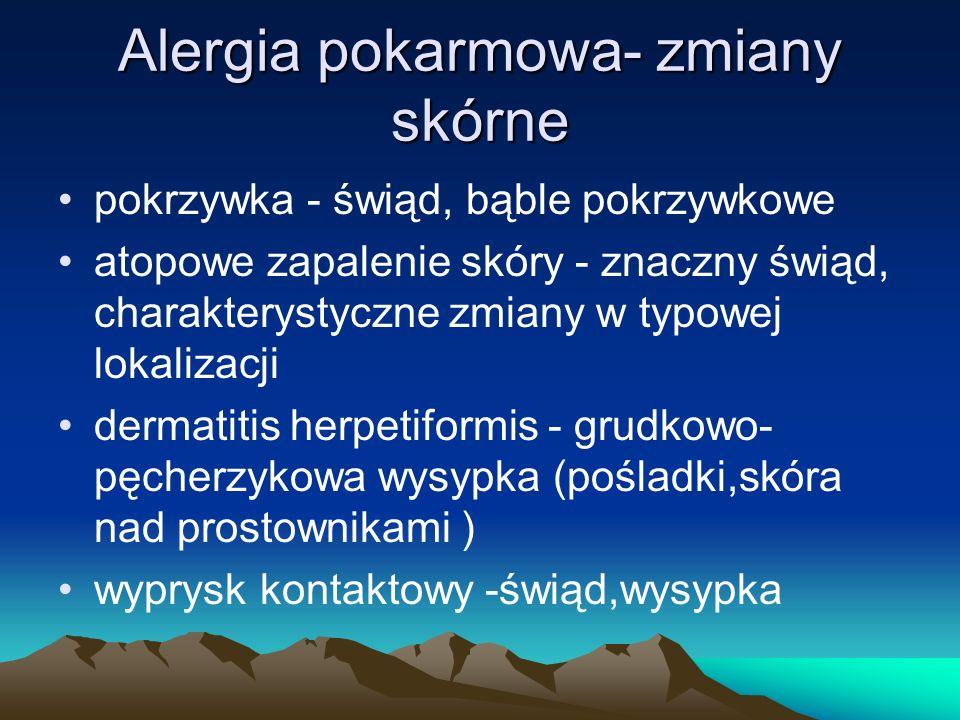 Alergia pokarmowa- zmiany skórne pokrzywka - świąd, bąble pokrzywkowe atopowe zapalenie skóry - znaczny świąd, charakterystyczne zmiany w typowej loka