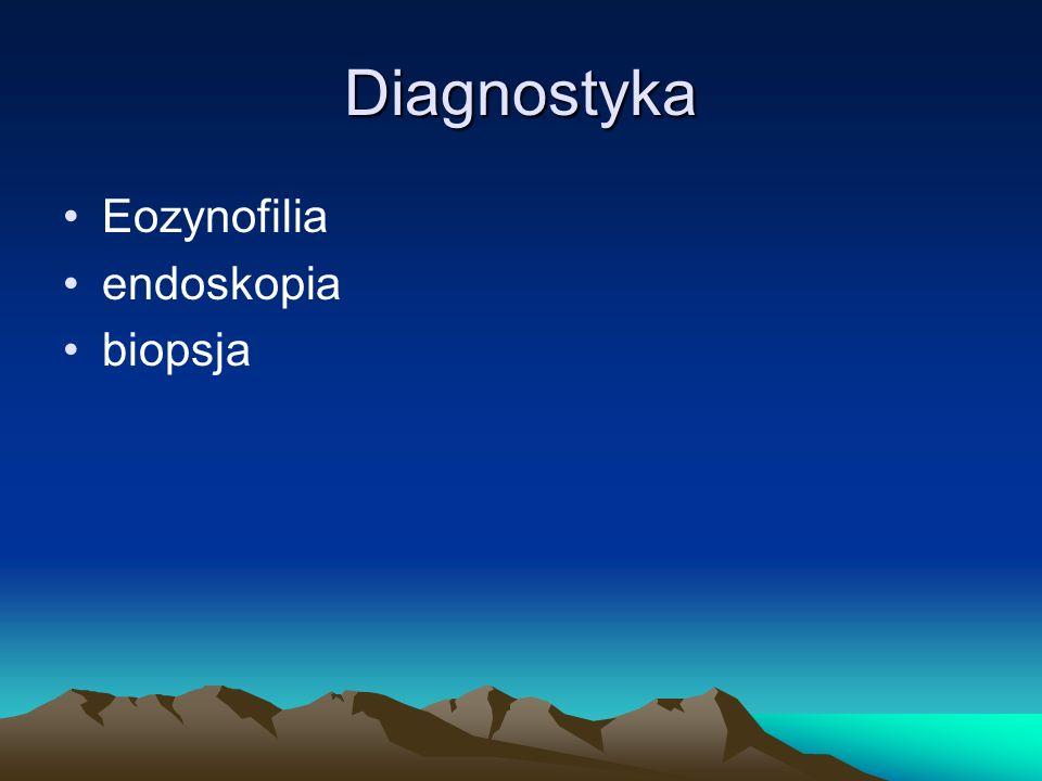 Diagnostyka Eozynofilia endoskopia biopsja