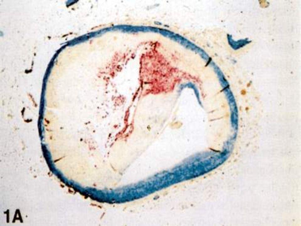 Blaszka miażdżycowa rdzeń lipidowy upośledzona hemostaza  NO  syntazy NO adhezyny chemotaksja komórki piankowate aktywowane SMC komórki zapalne degr