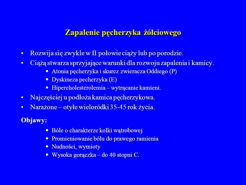 Zapalenie pęcherzyka żółciowego Leczenie zachowawcze:  Antybiotykoterapia  Leki rozkurczowe Leczenie operacyjne, gdy:  Nieskuteczne leczenie zachowawcze  Żółtaczka  Ostre zapalenie trzustki.