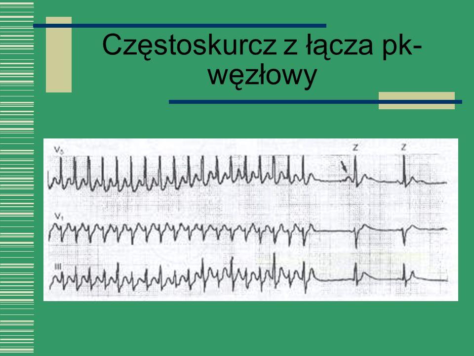 Częstoskurcz z łącza pk- węzłowy