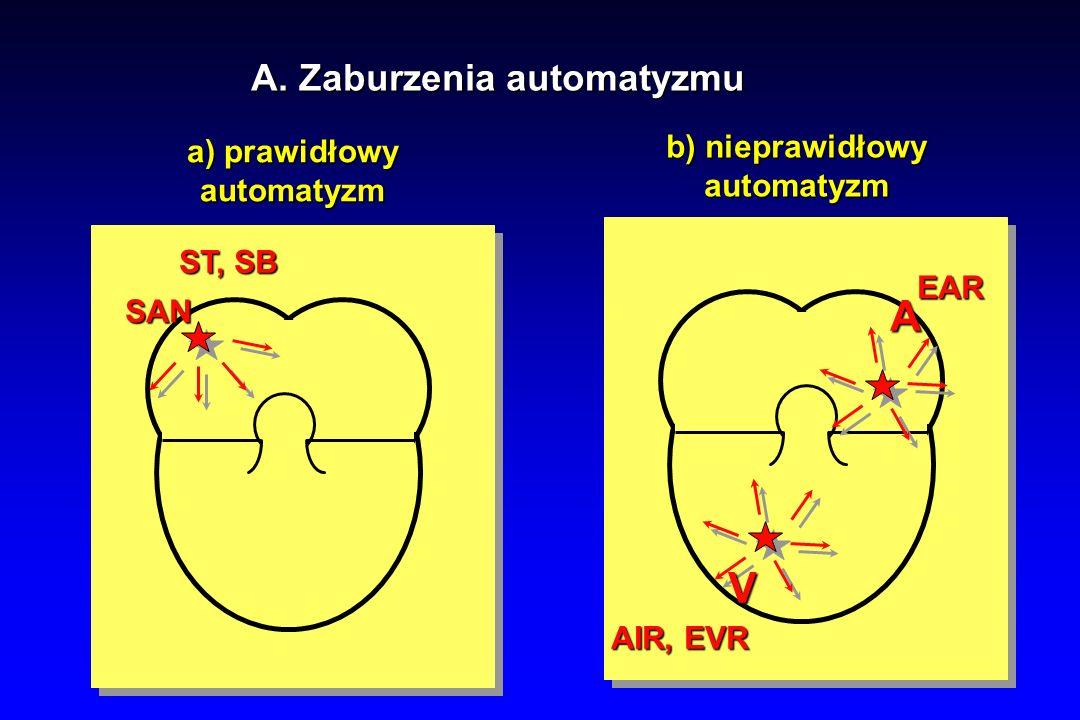 Pęczkowy częstoskurcz komorowy (FVT) MECHANIZM: - reentry w obrębie odnóg pęczka Hisa (zazwyczaj tylna wiązka pęczka Hisa (zazwyczaj tylna wiązka lewej odnogi) lewej odnogi) EKG: - częstoskurcz o stosunkowo wąskich zesp.