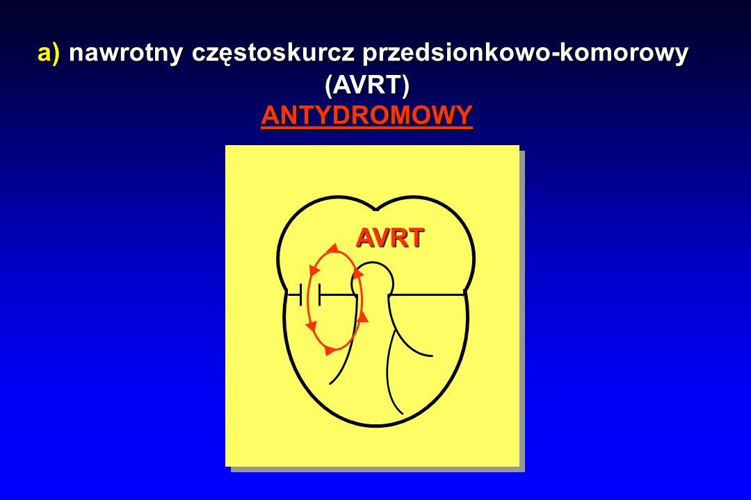 a) nawrotny częstoskurcz przedsionkowo-komorowy (AVRT)ANTYDROMOWY AVRT