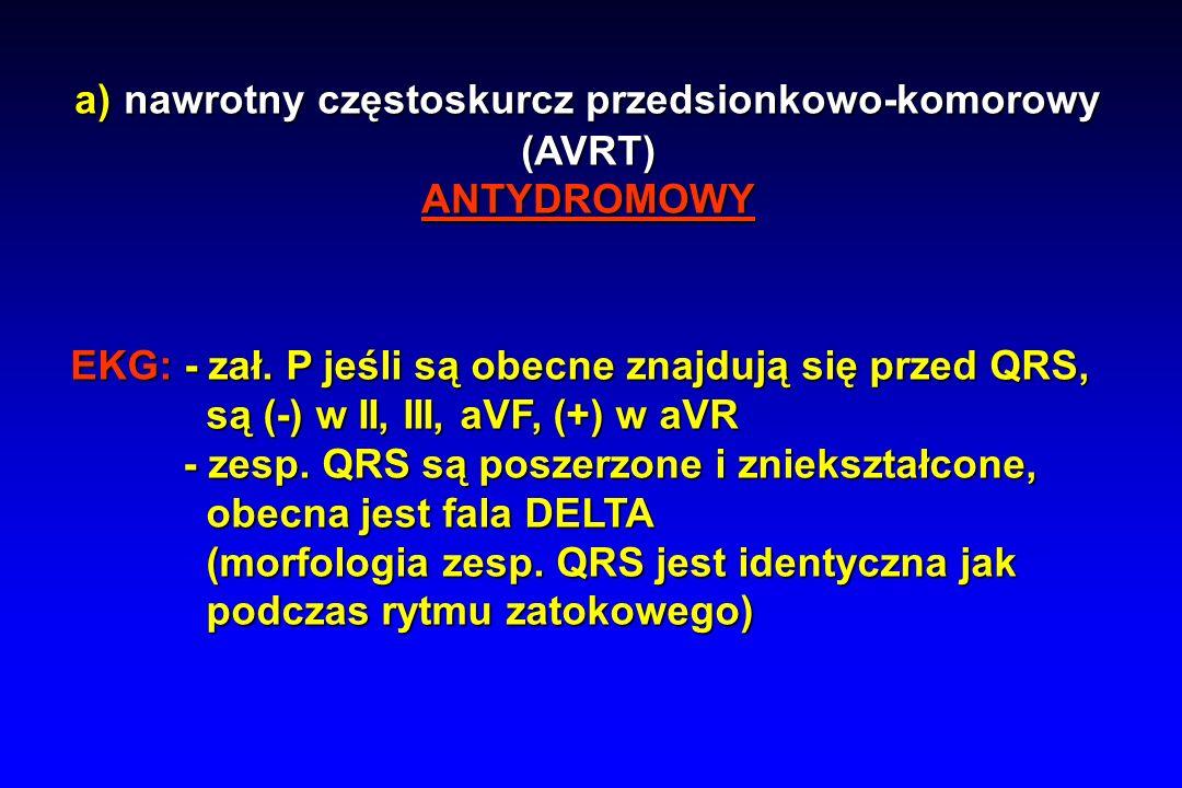 a) nawrotny częstoskurcz przedsionkowo-komorowy a) nawrotny częstoskurcz przedsionkowo-komorowy(AVRT)ANTYDROMOWY EKG: - zał.