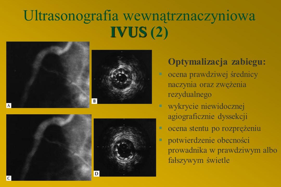 IVUS Ultrasonografia wewnątrznaczyniowa IVUS (1) Diagnostyka: §uwidocznienie prawdziwej objętości blaszki miażdżycowej i światła naczynia §ocena zmian