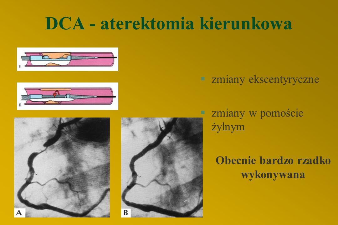 """STENTY Najważniejsze wskazania: §zagrażające zamknięcie tętnicy (dyssekcja) - """"bailout stenting"""" §po udrożnieniu przewlekle niedrożnej tętnicy §subopt"""