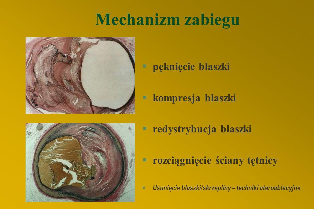 ROTA ROTABLACJA §długie, zwapniałe zwężenia §rozsiana restenoza w stencie Obecnie rzadko wykonywana