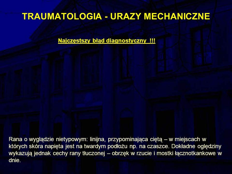 TRAUMATOLOGIA - URAZY MECHANICZNE Najczęstszy błąd diagnostyczny !!.