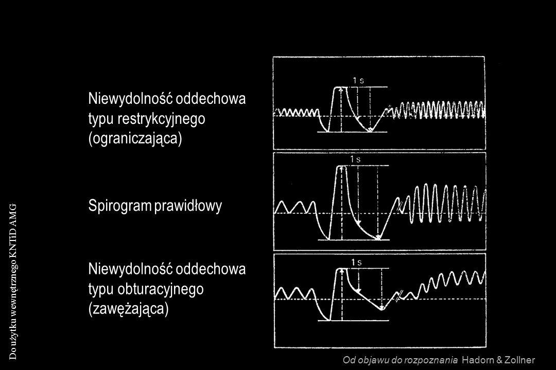 Do użytku wewnętrznego KNTiD AMG Niewydolność oddechowa typu restrykcyjnego (ograniczająca) Niewydolność oddechowa typu obturacyjnego (zawężająca) Spirogram prawidłowy Od objawu do rozpoznania Hadorn & Zollner