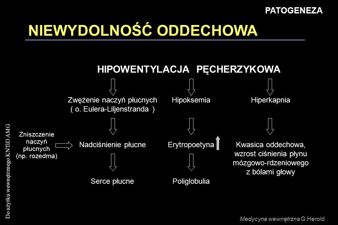 Do użytku wewnętrznego KNTiD AMG NIEWYDOLNOŚĆ ODDECHOWA HIPOWENTYLACJA PĘCHERZYKOWA Zwężenie naczyń płucnych ( o. Eulera-Liljenstranda ) HipoksemiaHip