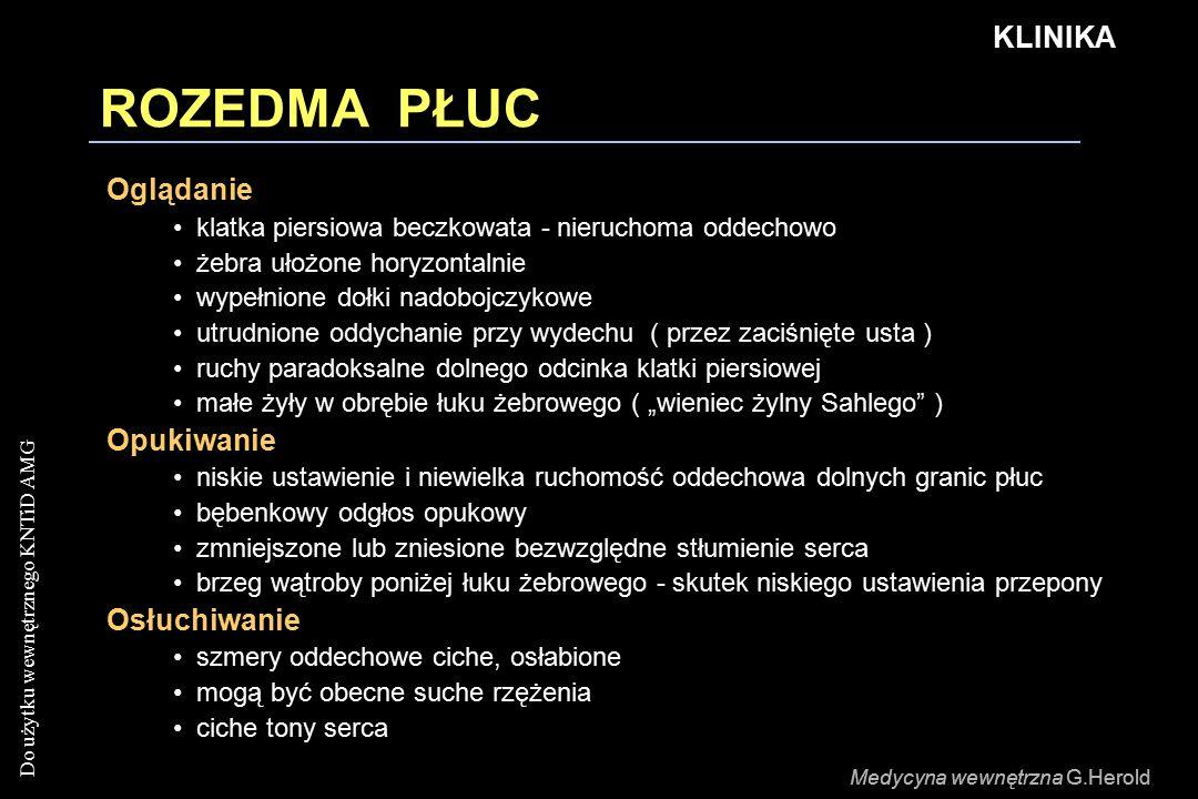 """Do użytku wewnętrznego KNTiD AMG Medycyna wewnętrzna G.Herold ROZEDMA PŁUC KLINIKA Oglądanie klatka piersiowa beczkowata - nieruchoma oddechowo żebra ułożone horyzontalnie wypełnione dołki nadobojczykowe utrudnione oddychanie przy wydechu ( przez zaciśnięte usta ) ruchy paradoksalne dolnego odcinka klatki piersiowej małe żyły w obrębie łuku żebrowego ( """"wieniec żylny Sahlego ) Opukiwanie niskie ustawienie i niewielka ruchomość oddechowa dolnych granic płuc bębenkowy odgłos opukowy zmniejszone lub zniesione bezwzględne stłumienie serca brzeg wątroby poniżej łuku żebrowego - skutek niskiego ustawienia przepony Osłuchiwanie szmery oddechowe ciche, osłabione mogą być obecne suche rzężenia ciche tony serca Medycyna wewnętrzna G.Herold"""
