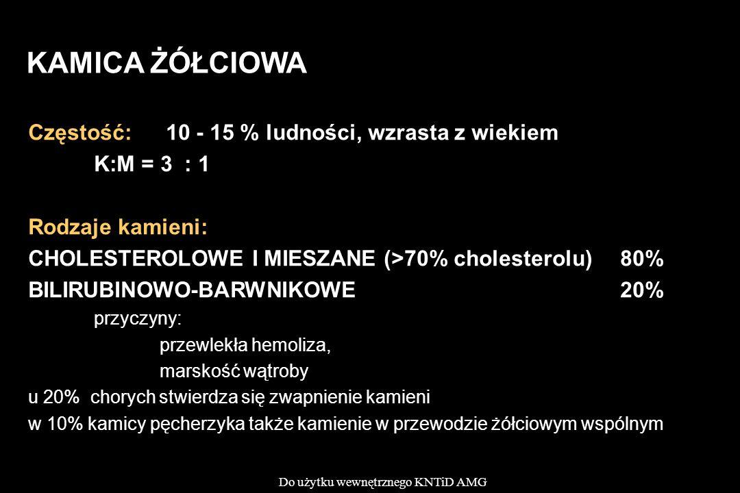 Do użytku wewnętrznego KNTiD AMG KAMICA ŻÓŁCIOWA Częstość: 10 - 15 % ludności, wzrasta z wiekiem K:M = 3 : 1 Rodzaje kamieni: CHOLESTEROLOWE I MIESZANE (>70% cholesterolu)80% BILIRUBINOWO-BARWNIKOWE20% przyczyny: przewlekła hemoliza, marskość wątroby u 20% chorych stwierdza się zwapnienie kamieni w 10% kamicy pęcherzyka także kamienie w przewodzie żółciowym wspólnym