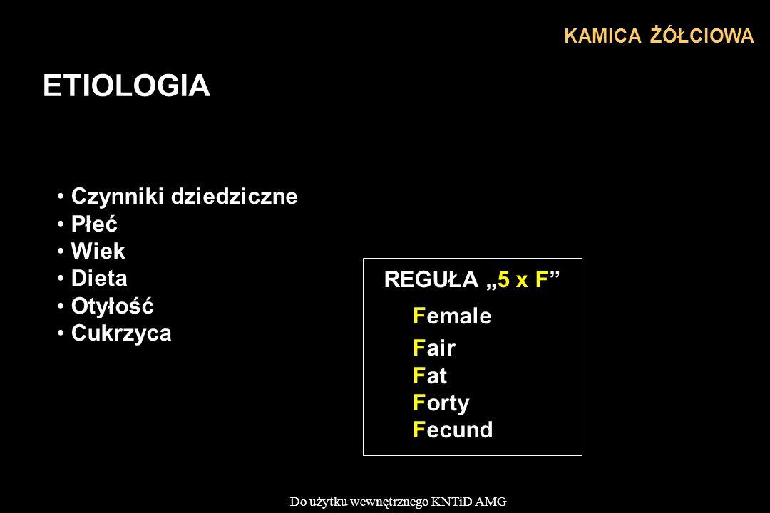 """Do użytku wewnętrznego KNTiD AMG KAMICA ŻÓŁCIOWA ETIOLOGIA Czynniki dziedziczne Płeć Wiek Dieta Otyłość Cukrzyca REGUŁA """"5 x F"""" Female Fair Fat Forty"""