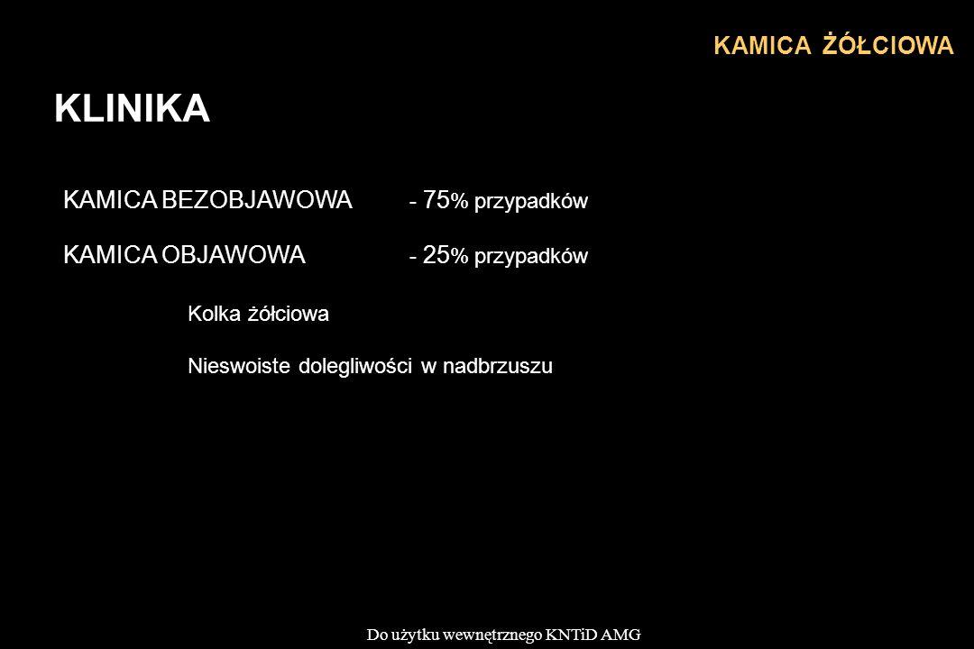 Do użytku wewnętrznego KNTiD AMG KLINIKA KAMICA ŻÓŁCIOWA KAMICA BEZOBJAWOWA - 75 % przypadków KAMICA OBJAWOWA - 25 % przypadków Kolka żółciowa Nieswoiste dolegliwości w nadbrzuszu