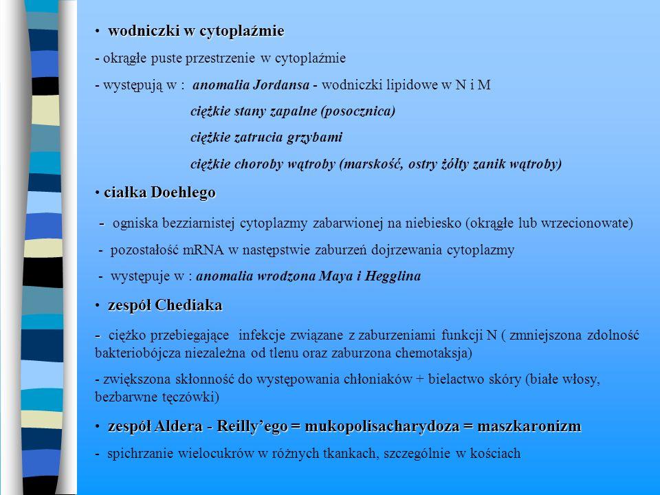 wodniczki w cytoplaźmie - okrągłe puste przestrzenie w cytoplaźmie - występują w : anomalia Jordansa - wodniczki lipidowe w N i M ciężkie stany zapaln