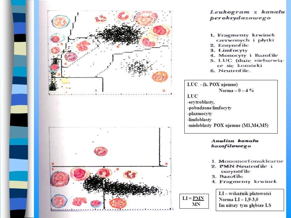 LUC - (k. POX ujemne) Norma – 0 – 4 % LUC -erytroblasty, -pobudzone limfocyty -plazmocyty -limfoblasty -mieloblasty POX ujemne (M1,M4,M5) LI = PMN MN