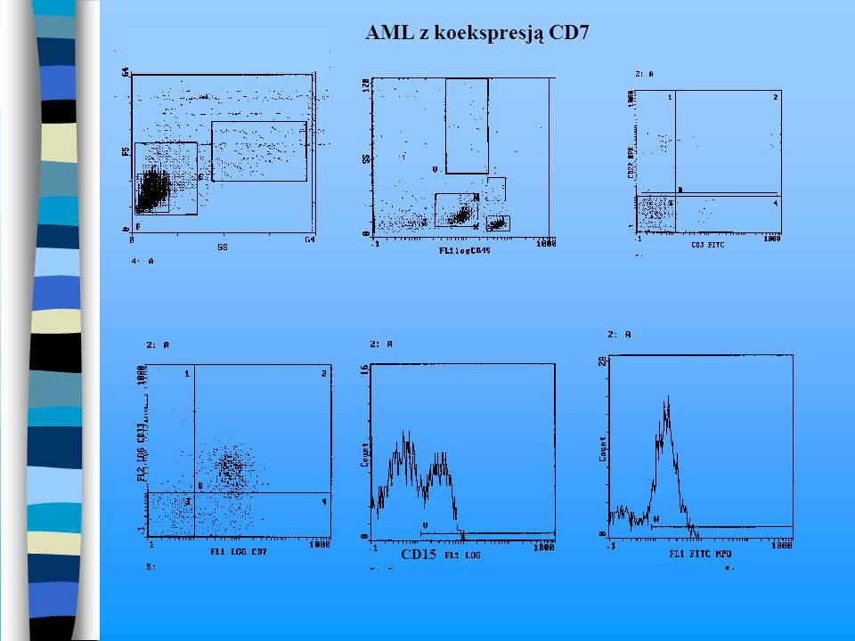 CD15 AML z koekspresją CD7