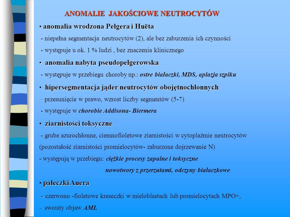 wodniczki w cytoplaźmie - okrągłe puste przestrzenie w cytoplaźmie - występują w : anomalia Jordansa - wodniczki lipidowe w N i M ciężkie stany zapalne (posocznica) ciężkie zatrucia grzybami ciężkie choroby wątroby (marskość, ostry żółty zanik wątroby) ciałka Doehlego - - ogniska bezziarnistej cytoplazmy zabarwionej na niebiesko (okrągłe lub wrzecionowate) - pozostałość mRNA w następstwie zaburzeń dojrzewania cytoplazmy - występuje w : anomalia wrodzona Maya i Hegglina zespół Chediaka - - ciężko przebiegające infekcje związane z zaburzeniami funkcji N ( zmniejszona zdolność bakteriobójcza niezależna od tlenu oraz zaburzona chemotaksja) - zwiększona skłonność do występowania chłoniaków + bielactwo skóry (białe włosy, bezbarwne tęczówki) zespół Aldera - Reilly'ego = mukopolisacharydoza = maszkaronizm - spichrzanie wielocukrów w różnych tkankach, szczególnie w kościach