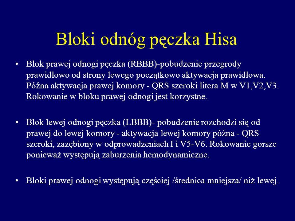 Bloki odnóg pęczka Hisa Blok prawej odnogi pęczka (RBBB)-pobudzenie przegrody prawidłowo od strony lewego początkowo aktywacja prawidłowa. Późna aktyw