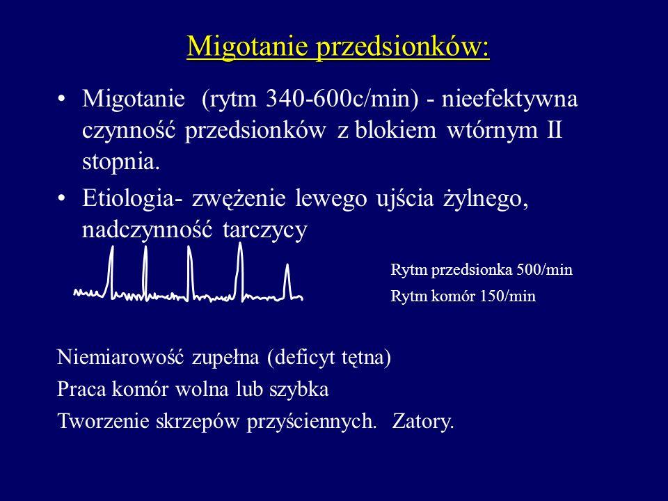 Migotanie przedsionków: Migotanie (rytm 340-600c/min) - nieefektywna czynność przedsionków z blokiem wtórnym II stopnia. Etiologia- zwężenie lewego uj