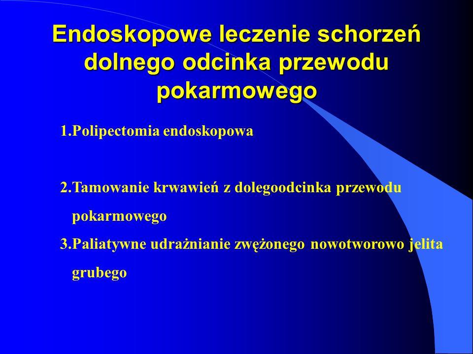 Endoskopowe leczenie schorzeń dolnego odcinka przewodu pokarmowego 1.Polipectomia endoskopowa 2.Tamowanie krwawień z dolegoodcinka przewodu pokarmoweg