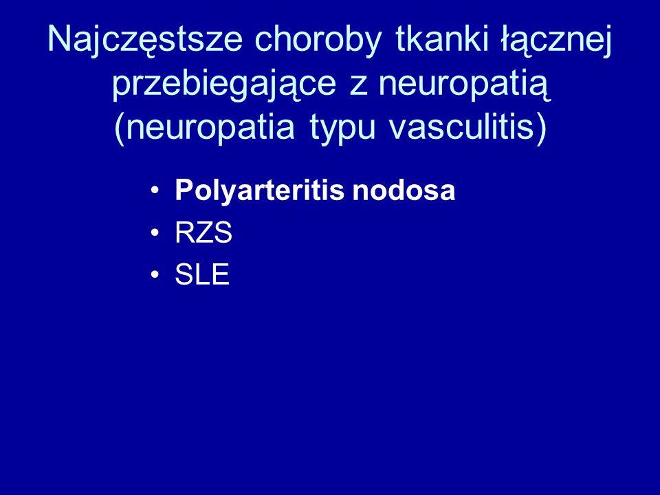 Najczęstsze choroby tkanki łącznej przebiegające z neuropatią (neuropatia typu vasculitis) Polyarteritis nodosa RZS SLE
