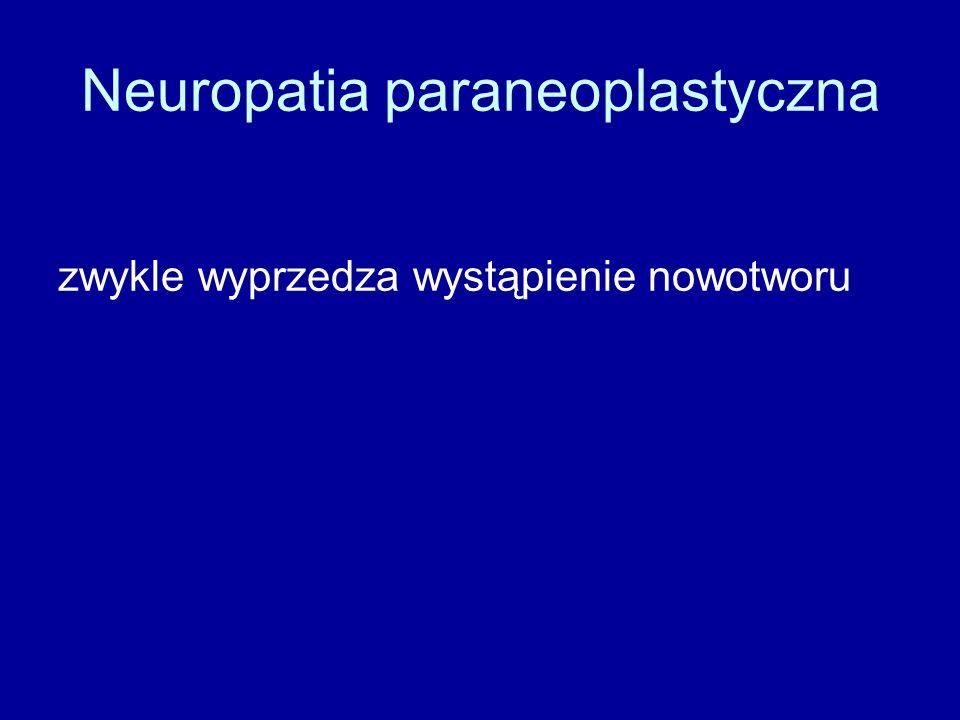 Neuropatia paraneoplastyczna zwykle wyprzedza wystąpienie nowotworu