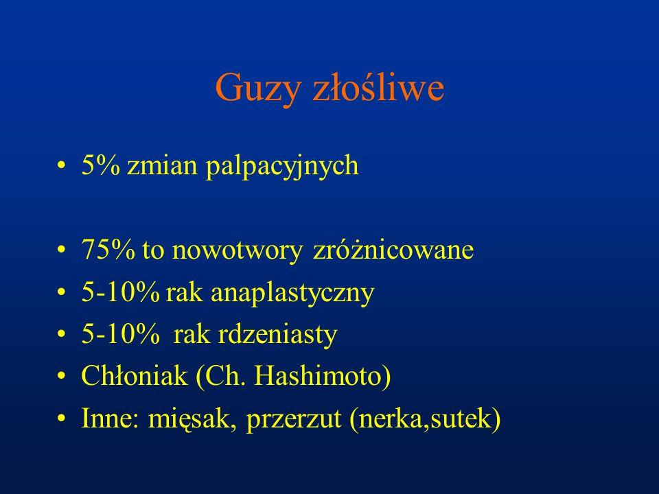 Guzy złośliwe 5% zmian palpacyjnych 75% to nowotwory zróżnicowane 5-10% rak anaplastyczny 5-10% rak rdzeniasty Chłoniak (Ch. Hashimoto) Inne: mięsak,