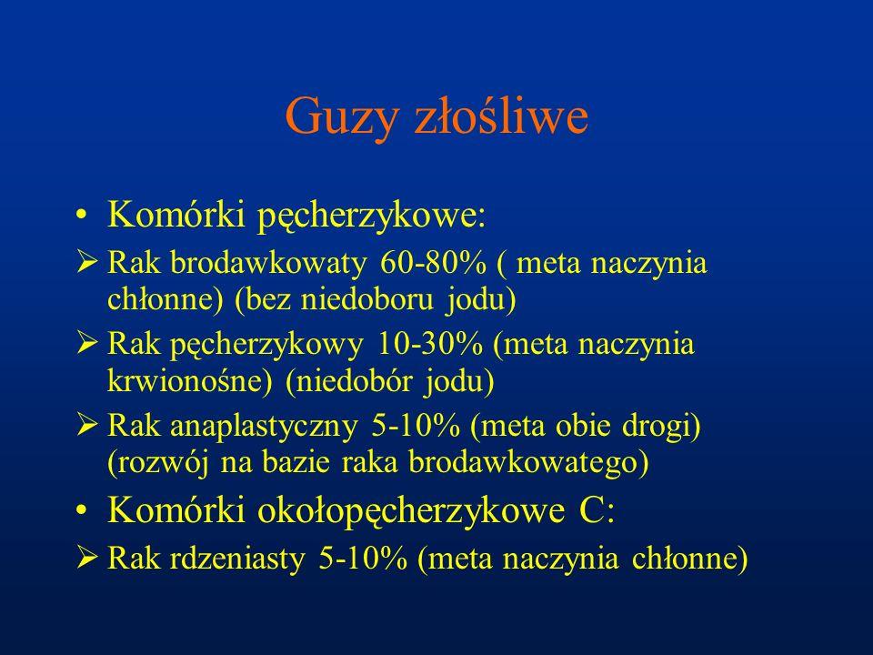 Guzy złośliwe Komórki pęcherzykowe:  Rak brodawkowaty 60-80% ( meta naczynia chłonne) (bez niedoboru jodu)  Rak pęcherzykowy 10-30% (meta naczynia k