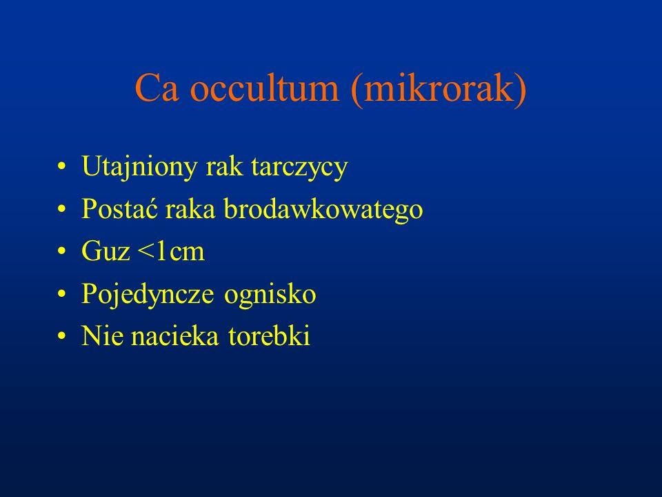 Ca occultum (mikrorak) Utajniony rak tarczycy Postać raka brodawkowatego Guz <1cm Pojedyncze ognisko Nie nacieka torebki