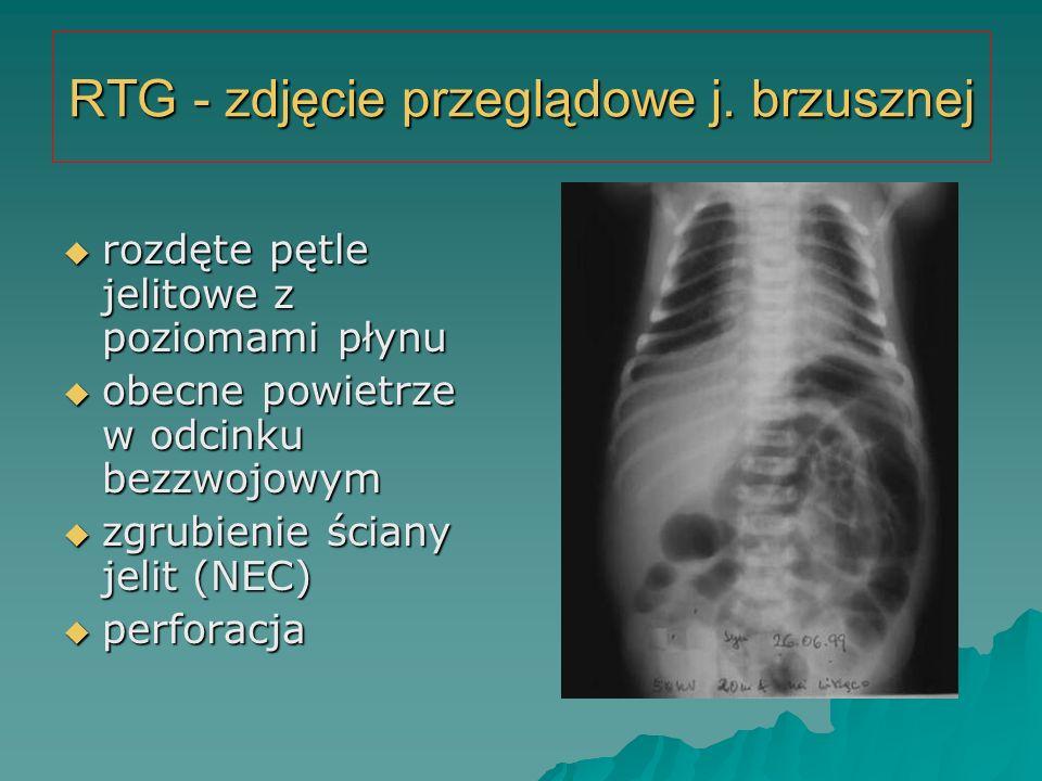 RTG - zdjęcie przeglądowe j. brzusznej  rozdęte pętle jelitowe z poziomami płynu  obecne powietrze w odcinku bezzwojowym  zgrubienie ściany jelit (