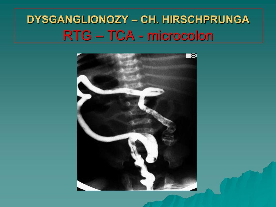 DYSGANGLIONOZY – CH. HIRSCHPRUNGA RTG – TCA - microcolon