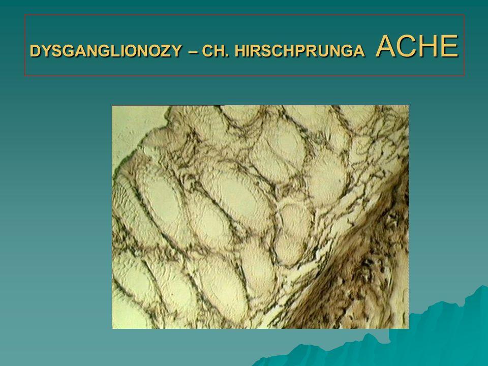 DYSGANGLIONOZY – CH. HIRSCHPRUNGA ACHE