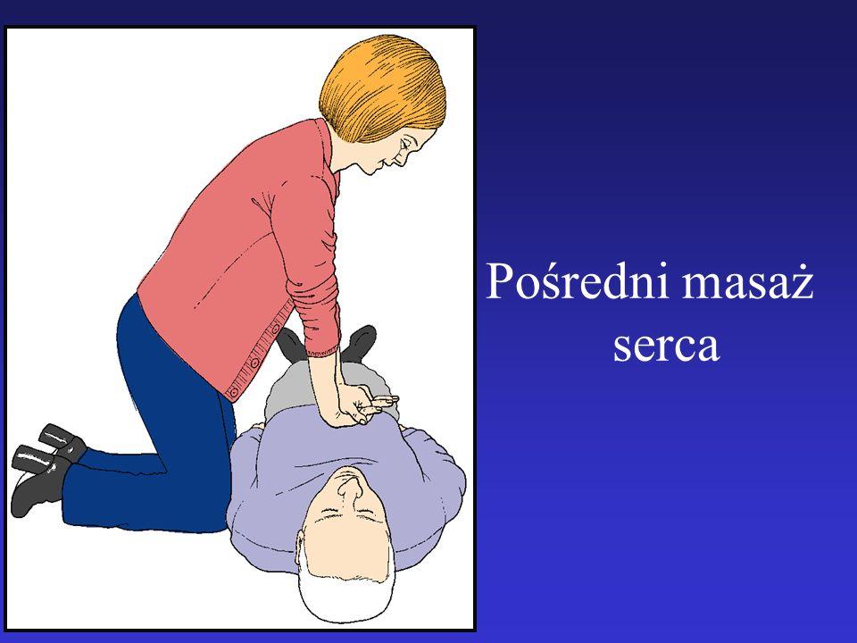 Pośredni masaż serca