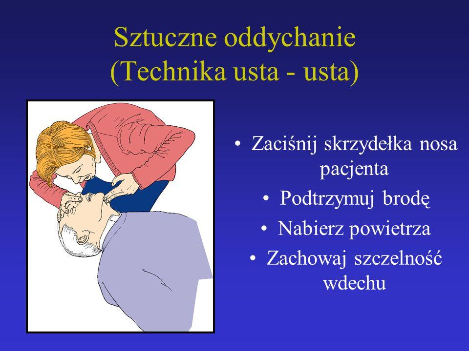 Sztuczne oddychanie (Technika usta - usta) Zaciśnij skrzydełka nosa pacjenta Podtrzymuj brodę Nabierz powietrza Zachowaj szczelność wdechu