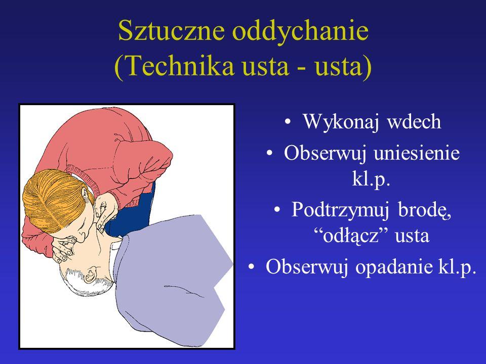 """Sztuczne oddychanie (Technika usta - usta) Wykonaj wdech Obserwuj uniesienie kl.p. Podtrzymuj brodę, """"odłącz"""" usta Obserwuj opadanie kl.p."""