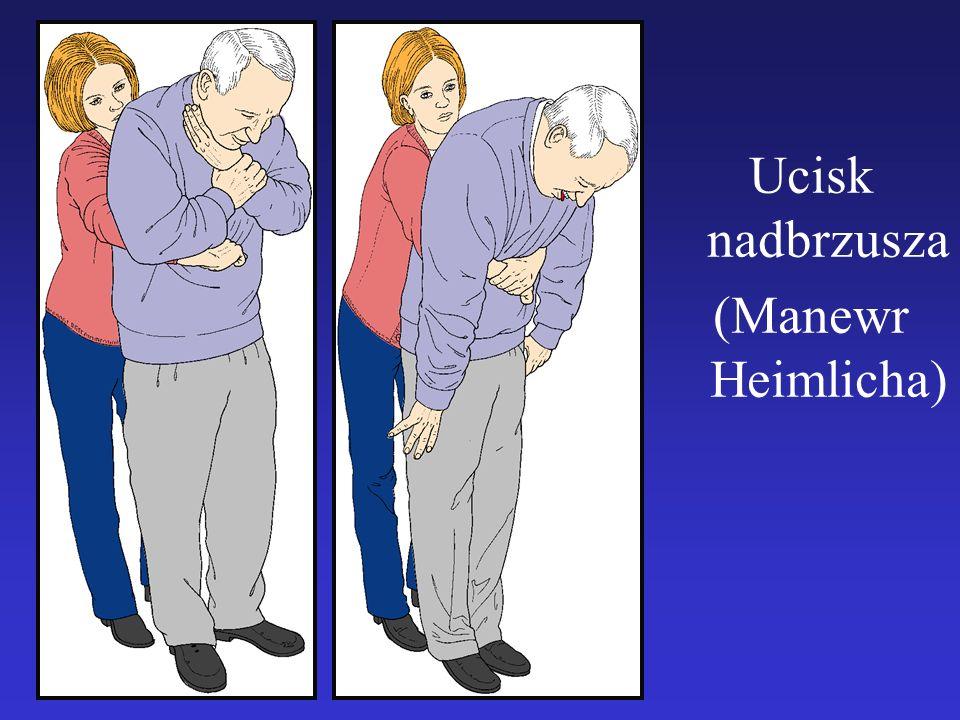 Ucisk nadbrzusza (Manewr Heimlicha)