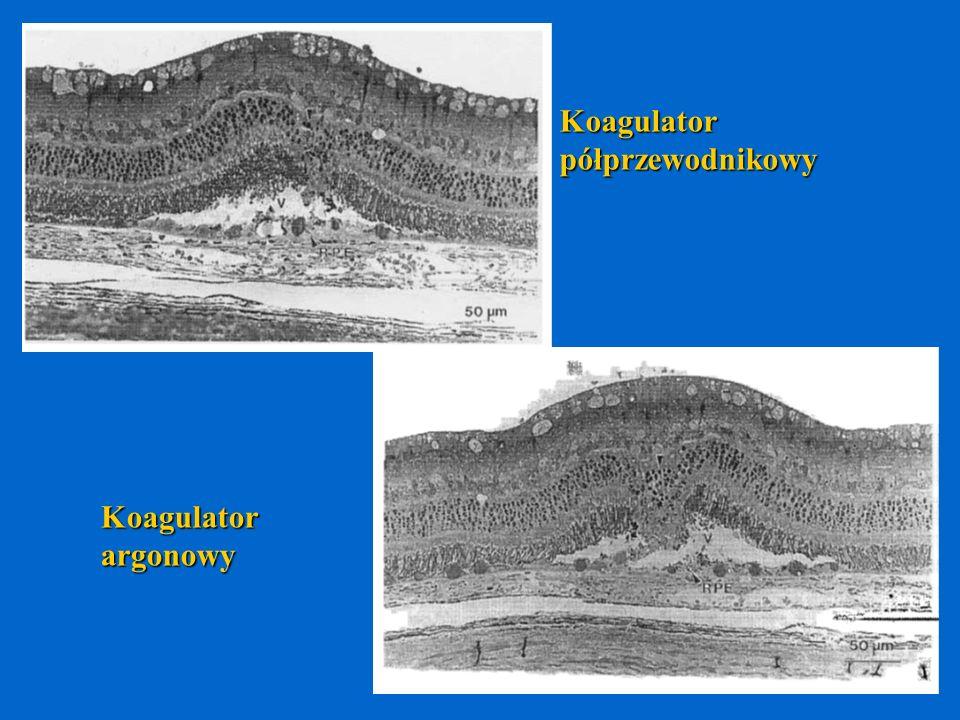 Koagulatorpółprzewodnikowy Koagulatorargonowy