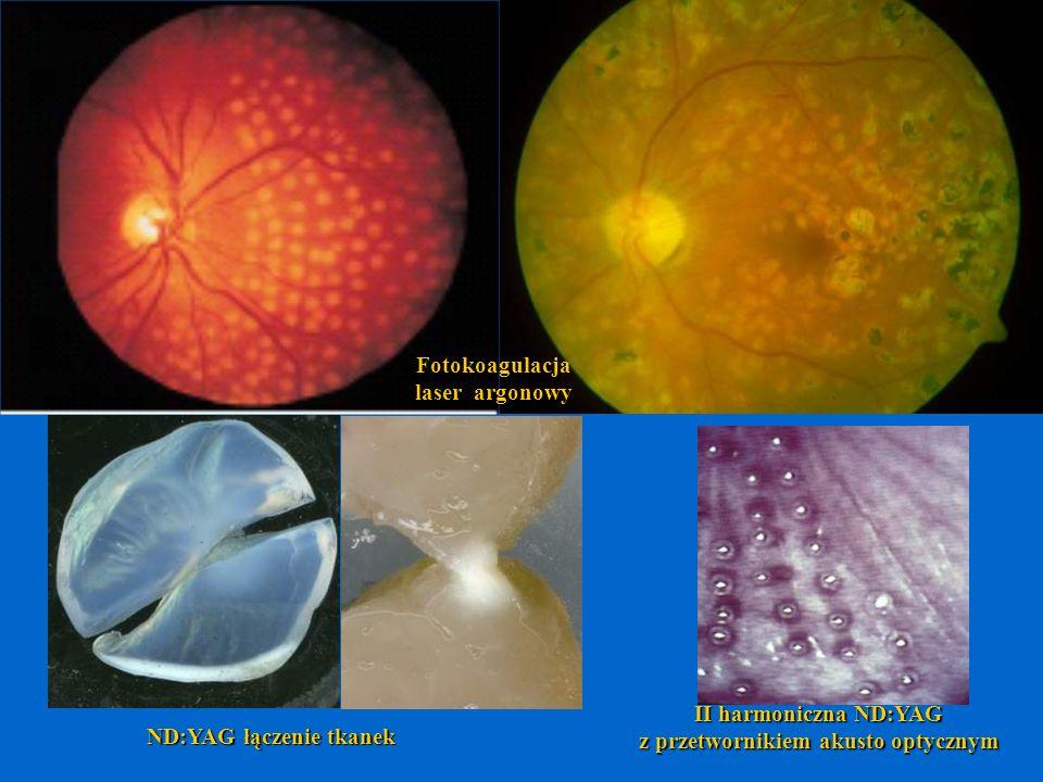 Fotokoagulacja laser argonowy II harmoniczna ND:YAG z przetwornikiem akusto optycznym ND:YAG łączenie tkanek