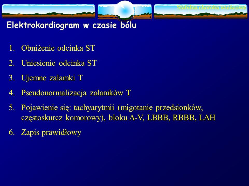 Stabilna choroba wieńcowa Elektrokardiogram w czasie bólu 1.Obniżenie odcinka ST 2.Uniesienie odcinka ST 3.Ujemne załamki T 4.Pseudonormalizacja załam