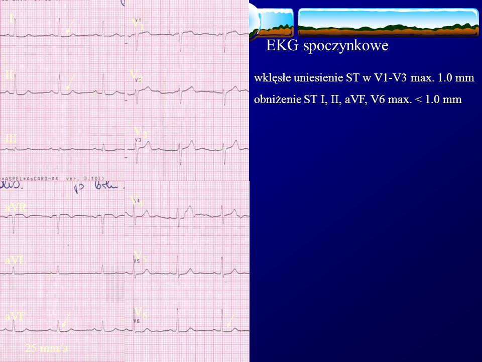 wklęsłe uniesienie ST w V1-V3 max. 1.0 mm obniżenie ST I, II, aVF, V6 max. < 1.0 mm EKG spoczynkowe I II III aVR aVF aVL V1V1 V2V2 V3V3 V4V4 V5V5 V6V6