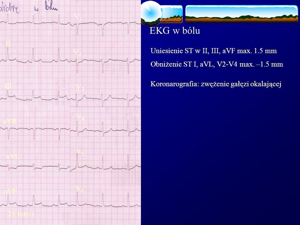EKG w bólu Uniesienie ST w II, III, aVF max. 1.5 mm Obniżenie ST I, aVL, V2-V4 max. –1.5 mm I II III aVR aVF aVL 25 mm/s V1V1 V2V2 V3V3 V4V4 V5V5 V6V6
