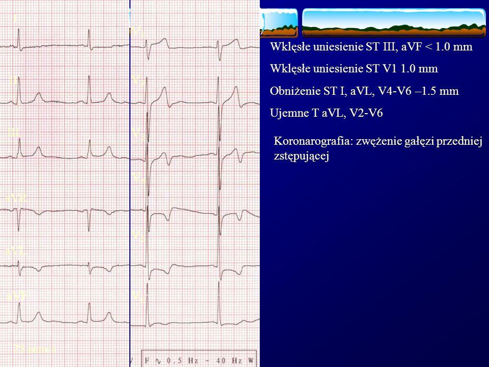 I II III aVR aVF aVL 25 mm/s V1V1 V2V2 V3V3 V4V4 V5V5 V6V6 Wklęsłe uniesienie ST III, aVF < 1.0 mm Wklęsłe uniesienie ST V1 1.0 mm Obniżenie ST I, aVL