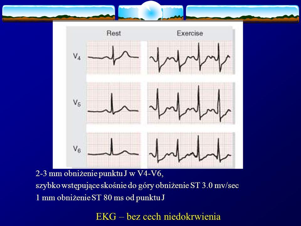 2-3 mm obniżenie punktu J w V4-V6, szybko wstępujące skośnie do góry obniżenie ST 3.0 mv/sec 1 mm obniżenie ST 80 ms od punktu J EKG – bez cech niedok