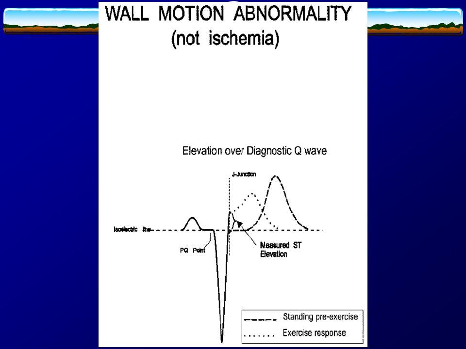 Zmiany w EKG wysiłkowym nieupoważniające do rozpoznania niedokrwienia 1.Zaburzenia rytmu i przewodzenia występujące bez towarzyszących kryteriów niedokrwienia 2.Ujemny załamek T bez zmiany odcinka ST 3.Uniesienie odcinka ST i odwrócenie ujemnego załamka T w strefie przebytego zawału serca 4.Wzrost amplitudy załamka R w odprowadzeniu V5 5.Odwrócenie fali U
